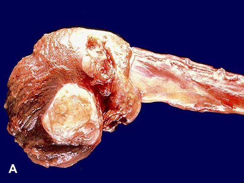 American Urological Association Sertoli Cell Tumor Sct